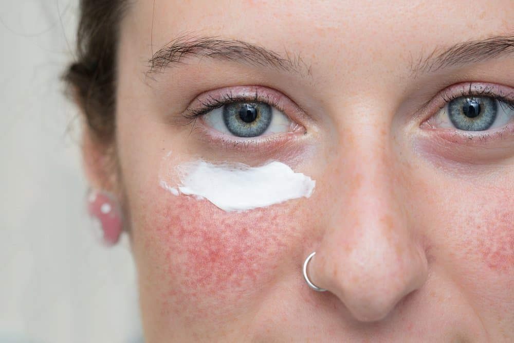 rosacea flare up